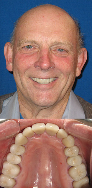 Male patient's smile before and after treatment