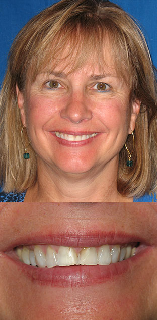 female patient's smile before and after treatment
