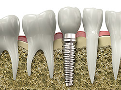 virtual model of a dental implant surrounded by natural teeth