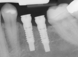 X-ray of dental implants in position